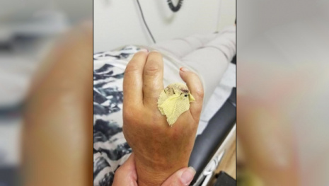 Woman Loses Finger on Waterslide